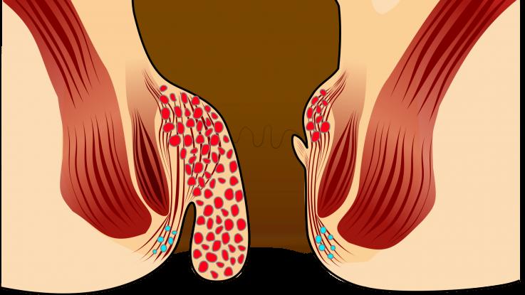 Гомеопатия в борьбе с геморроем
