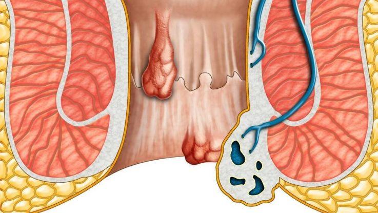 С какими симптомами геморроя борется троксевазин