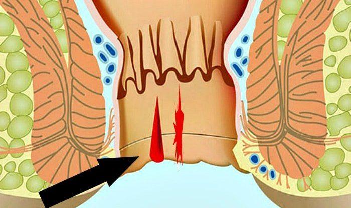 Проктологические причины жжения в заднем проходе