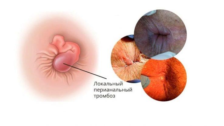 Классификация тромбоза. Степени и формы